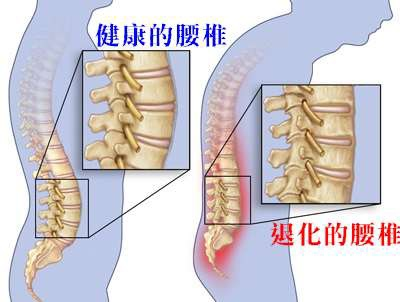 Home-Remedies-For-Spondylosis1