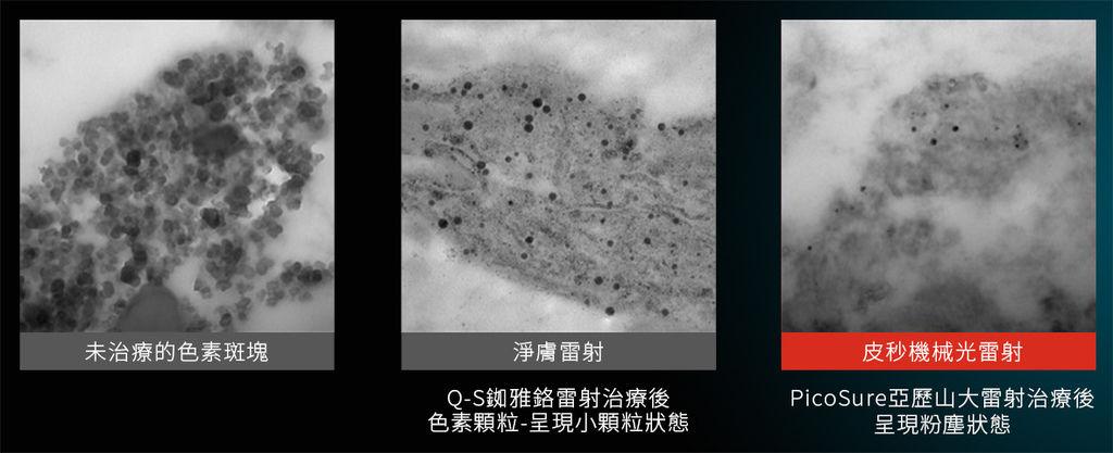 755皮秒雷射蜂巢透鏡蜂巢皮秒雷射光老化膠原蛋白雀斑肝斑黑斑曬斑毛孔細紋凹疤6