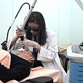 蜂巢透鏡755皮秒雷射除斑肝斑01