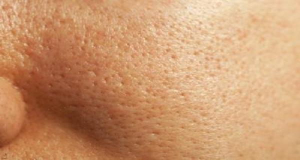 picosure755皮秒雷射蜂巢透鏡毛孔粗大凹疤刺青斑點細紋膠原蛋白美肌博士 (6).jpg