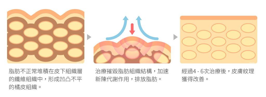 美肌博士4D馬甲電波瘦身健身減肥減脂線條肌肉脂肪局部胖緊實身材 (4).jpg
