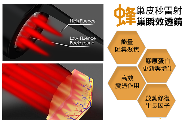 PicoSure755皮秒雷射蜂巢透鏡凹疤細紋毛孔刺青黑色素 (5).png