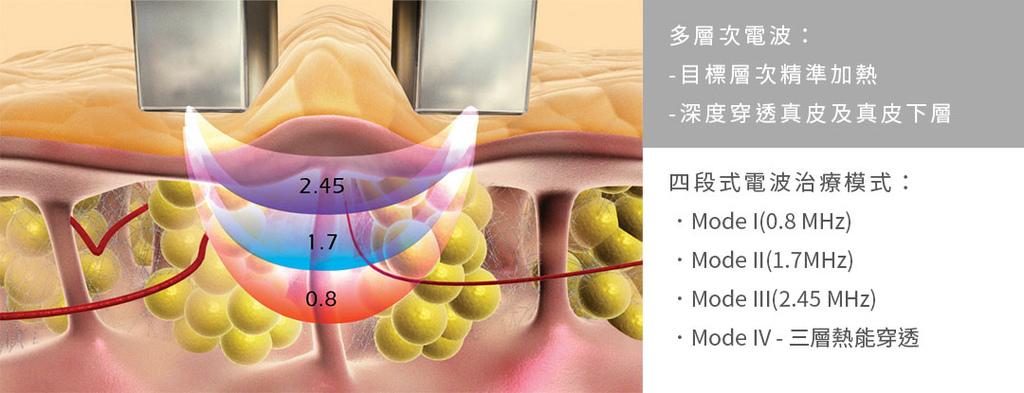 Reaction4D馬甲電波美肌博士蘋果型身材瘦身減肥緊緻線條減脂04