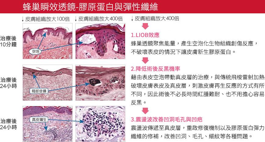 PicoSure755皮秒雷射蜂巢透鏡FDA凹疤細紋痘疤毛孔刺青膠原蛋白美肌博士 (2).jpg