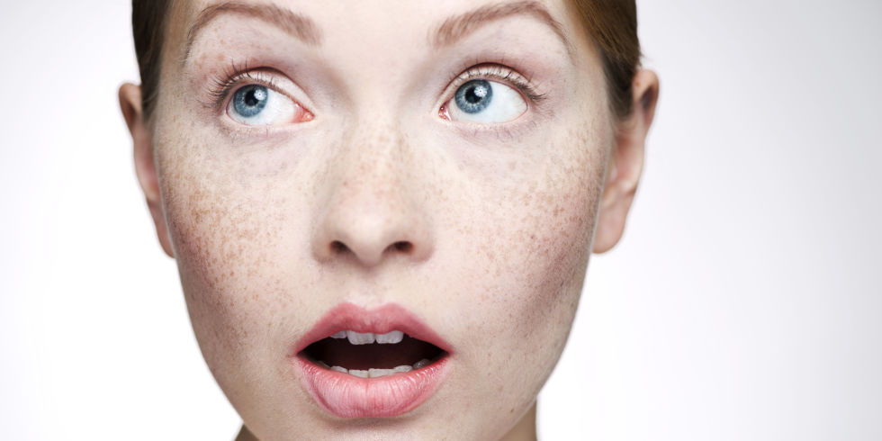 PicoSure755皮秒雷射蜂巢透鏡膠原蛋白雷射保養痘疤毛孔斑點黑色素美肌博士 (2).jpg