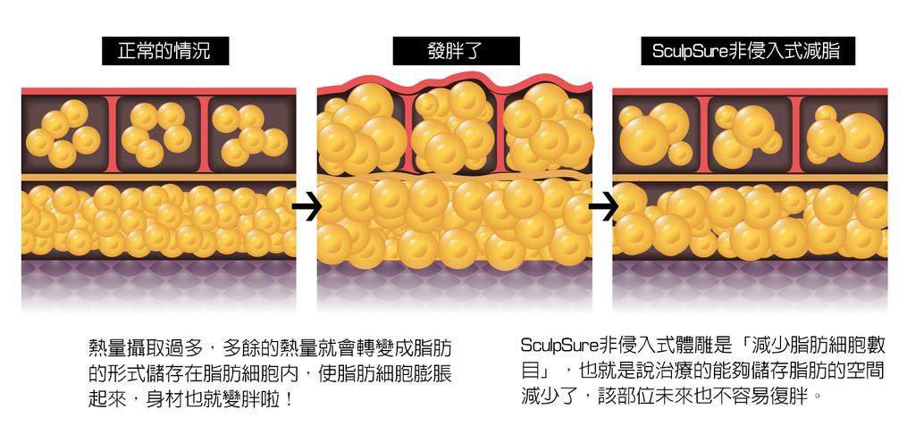 sculpsure絲酷秀體雕雷射溶脂非侵入式冷凍溶脂雷射減脂冷凍減脂8.png