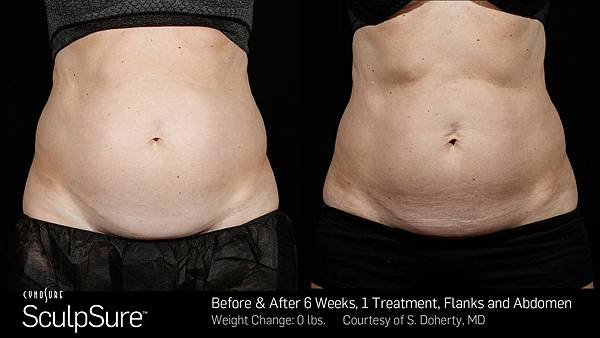 BA-SculpSure-SBS-Doherty-1TX-6Wks-2.jpg