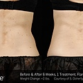 BA-SculpSure-S-Doherty-1TX-6WKs.jpg