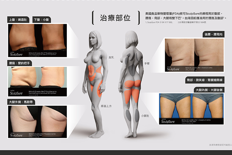 sculpsureSculpSure絲酷秀體雕減肥抽脂溶脂減重腹部大腿小腹肥胖手臂
