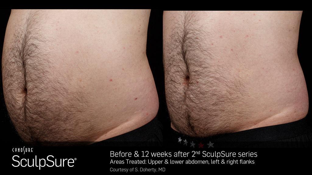 體雕sculpsureSculpSure減肥減脂抽脂中醫減肥埋線瘦小腹塑身雕塑