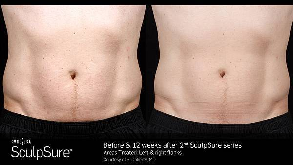 BA_SculpSure_S.Doherty_Core_2tx_12wks.03.jpg