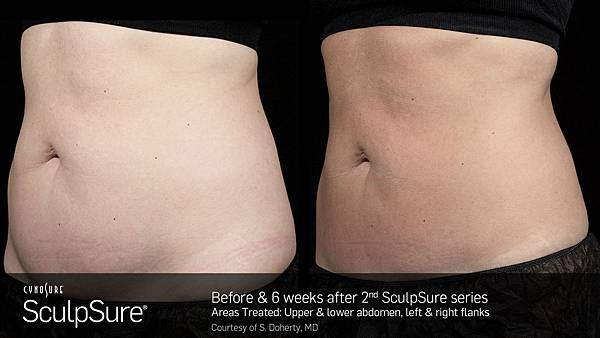 BA_SculpSure_S_Doherty_Core_2Tx_6weeks_01_19.jpg