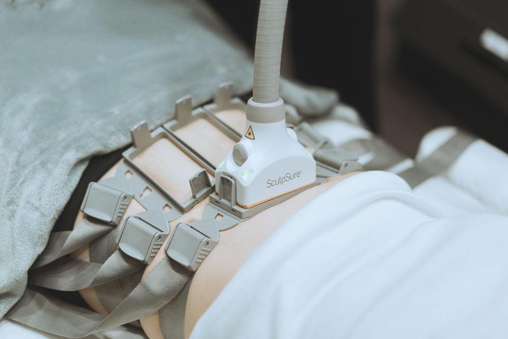 sculpsureSculpSure絲酷秀酷熱雷射酷熱溶脂體雕減肥抽脂溶脂減重腹部大腿小腹肥胖手臂