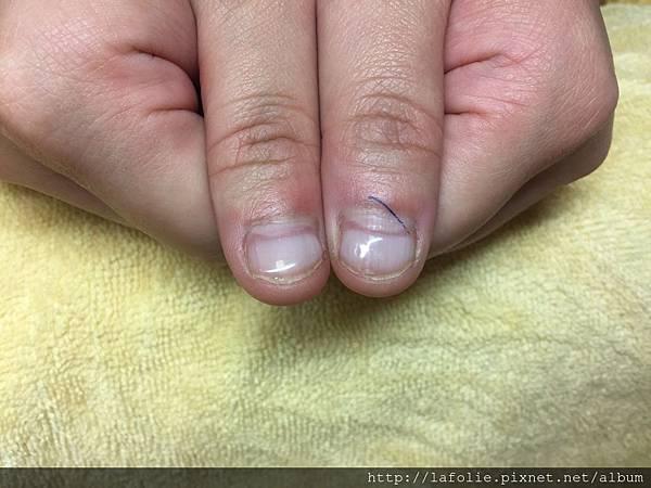 第三次咬甲矯正處理大拇指.jpg