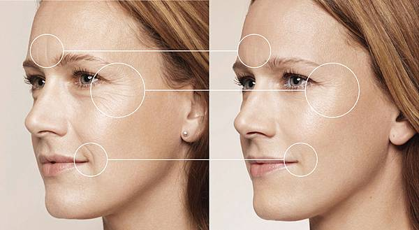 Restylane-before-after_001.jpg