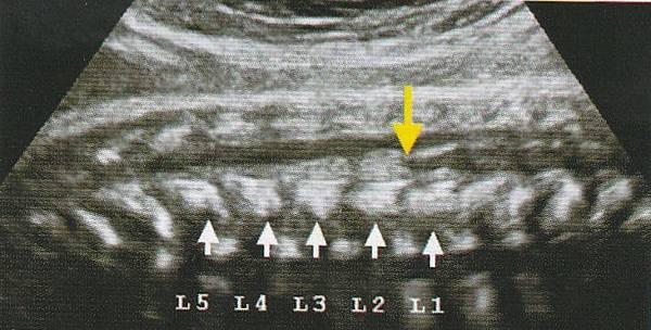 conus medullaris 34 weeks