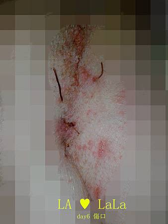 20140102  day6傷口.jpg