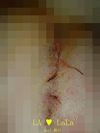 20140103 day7 傷口.jpg