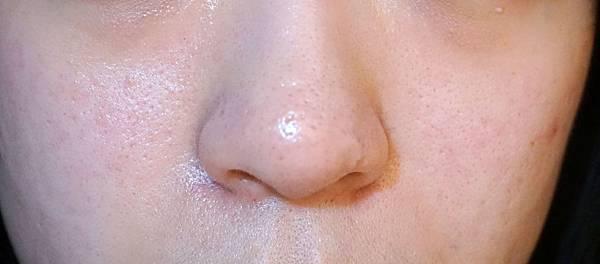 0330-飛梭雷射前的皮膚:痘疤/毛孔粗大清晰可見