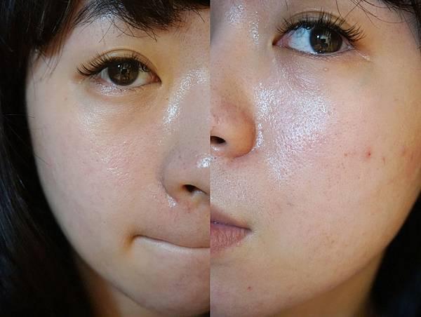 站前淨妍醫美進行飛梭雷射前的皮膚-滿滿的痘疤、粗大毛孔