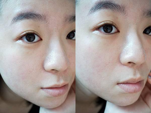 ▲5/5二次飛梭雷射術後:一週後又能開始正常化妝囉 | 飛梭術後保養