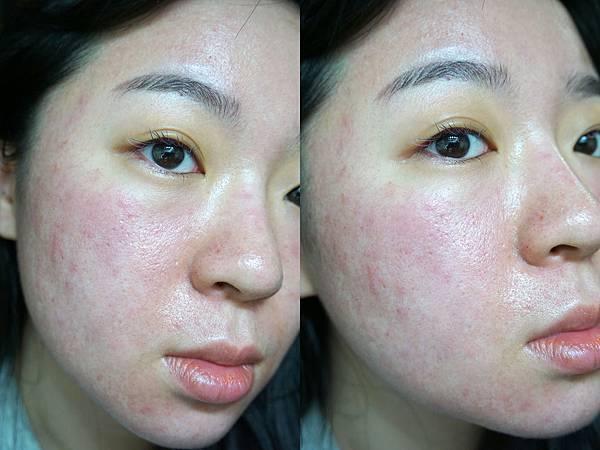 7/15 第3次飛梭雷射術後: 第1天皮膚很紅,我的術後保養為瘋狂保濕與補充膠原蛋白
