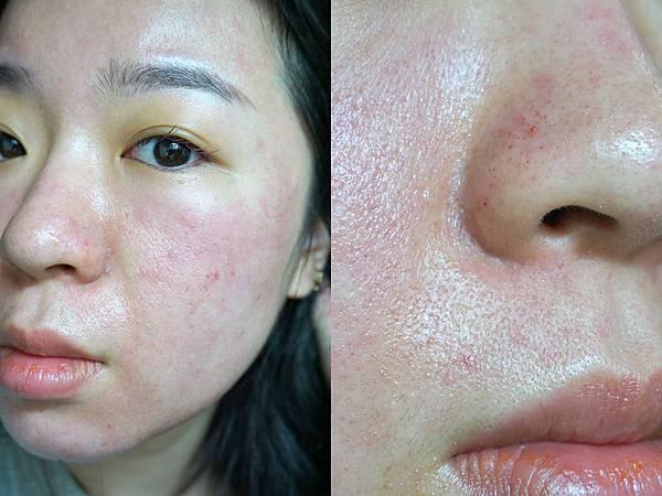 7/15 第3次飛梭雷射術後: 第1天皮膚很紅, 鼻子旁血點滿清楚的,比較紅的地方通常也是需要特別醫美的部位