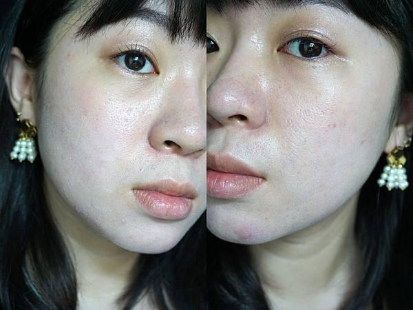 第3次飛梭雷射術後第4天: 受不了每天帶口罩出門,今天試著化妝了 | 飛梭雷射術後保養