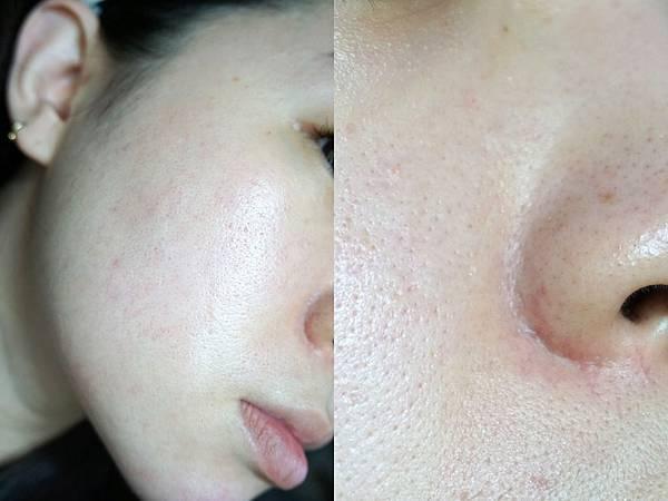 7/20 第3次飛梭雷射術後第7天: 比起術前,飛梭雷射對於除疤、痘疤治療與毛孔粗大等修護是有感