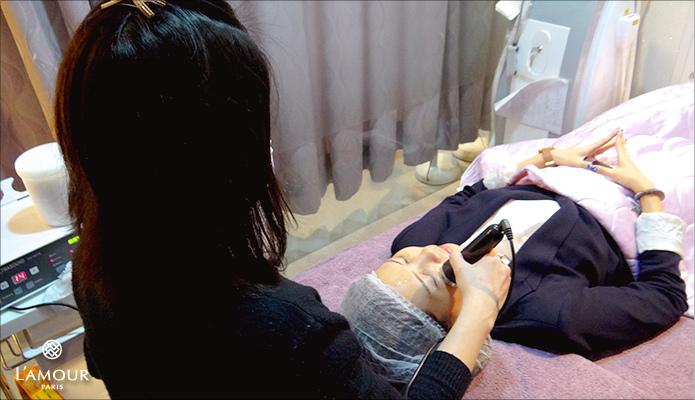 超音波拉皮 超音波拉皮 費用 超音波拉皮 價格 超音波拉皮 會不會痛 Ulthera™ 極線音波拉皮 極限音波拉皮 筋膜拉皮 lamour君綺診所 超音波拉皮08.jpg