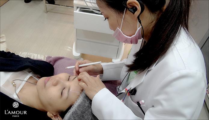 超音波拉皮 超音波拉皮 費用 超音波拉皮 價格 超音波拉皮 會不會痛 Ulthera™ 極線音波拉皮 極限音波拉皮 筋膜拉皮 lamour君綺診所 超音波拉皮10.jpg
