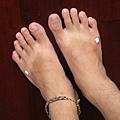 一直走路被拖鞋磨受傷的腳