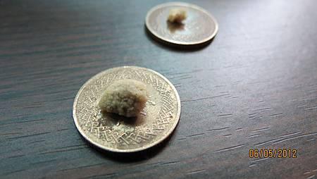 2012.05.05排出約1公分圓形狀腎結石