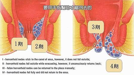 2014.10.16我的痔瘡是一顆紅色鮮艷的痔核-痔瘡出血穿上生理褲貼上蝶翼衛生棉去上班-內痔分四期示意圖