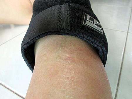 2018.06.26LP 美國護具LP733CA 透氣式兩側彈簧條調整型護膝使用心得 (10)-小腿無法緊密包覆