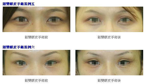割雙眼皮手術3.jpg