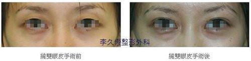 韓式六點縫雙眼皮案例-2.jpg