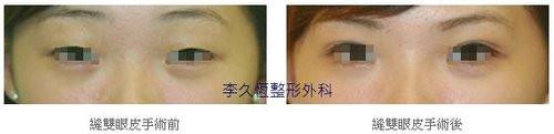 韓式六點縫雙眼皮案例-1.jpg