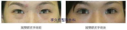 韓式六點縫雙眼皮案例-5.jpg