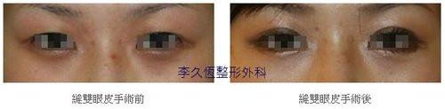 韓式六點縫雙眼皮案例-3.jpg
