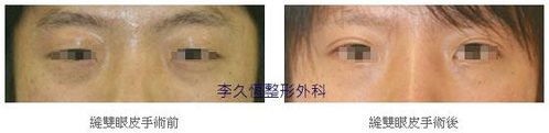 韓式六點縫雙眼皮案例-4.jpg