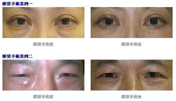 眼袋手術1.jpg