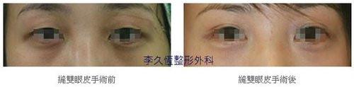 韓式六點縫雙眼皮案例-6.jpg