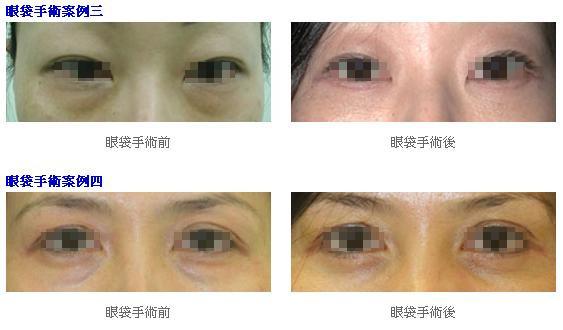 眼袋手術2.jpg
