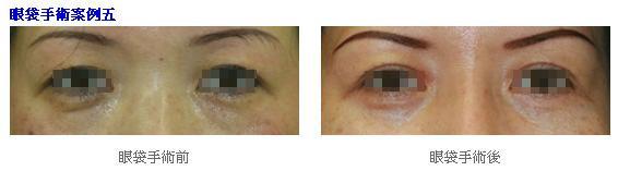 眼袋手術3.jpg