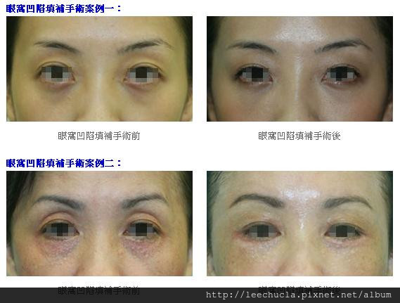 眼窩凹陷填補1.jpg