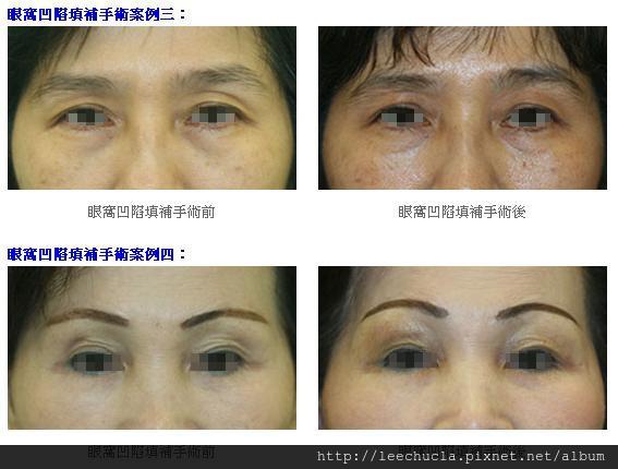 眼窩凹陷填補2.jpg