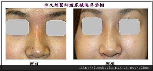 李久恆醫師-打玻尿酸隆鼻案例照片5.jpg