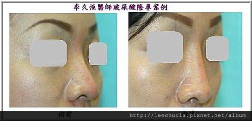 李久恆醫師-打玻尿酸隆鼻案例照片4.jpg