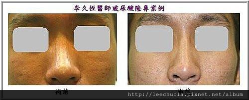 李久恆醫師-打玻尿酸隆鼻案例照片9.jpg
